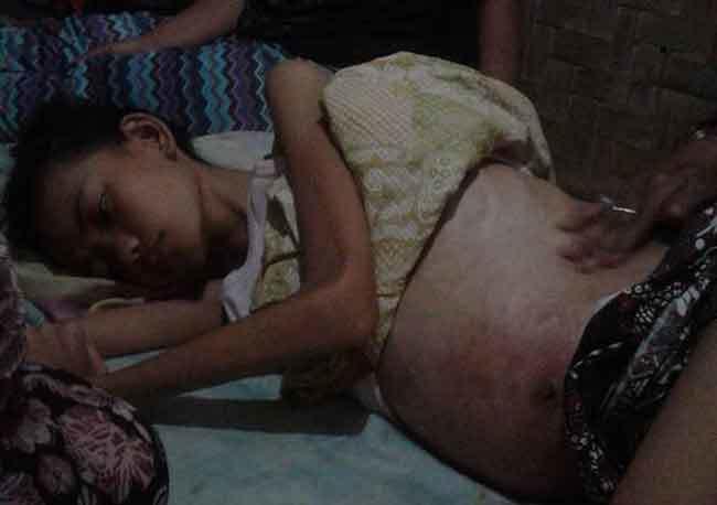 gadis penderita tumor ganas